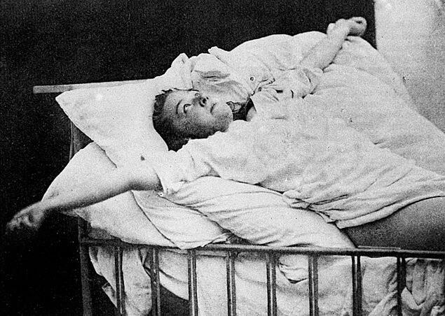 convulsão psicologica - convuls  es psicog  nicas - Ataque epilético ou convulsão psicogênica? Entenda a diferença desses fenômenos tão confundidos