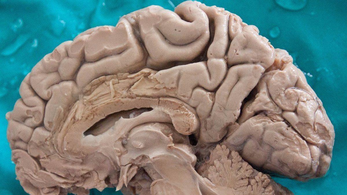 hemisfério cerebral direito - hemisferio cerebral direito - Hemisfério cerebral direito: características e funções